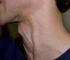 Porque tengo un bulto en el cuello