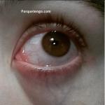 Porqué Tengo Una Parte Del Ojo Rojo