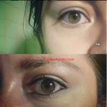 Porque Tengo Los Ojos Amarillos Si No Tengo Hepatitis