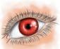 Porque Tengo Los Ojos Rojos Y Me Duele La Cabeza
