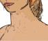 Porque Tengo Arrugas En El Cuello