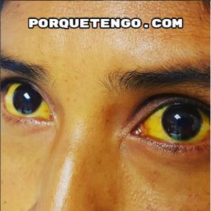 Porque Tengo Manchas Amarillas En Los Ojos
