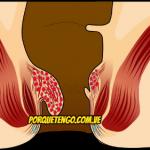 Las 5 Pastillas Para Hemorroides Más Efectivas